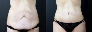 Tummy Tuck with Liposuction and Fat Transfer