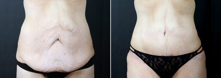 tummy-tuck-liposuction-2291a-sobel