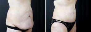 tummy-tuck-liposuction-2291b-sobel