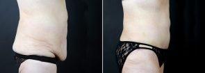 tummy-tuck-liposuction-2291c-sobel