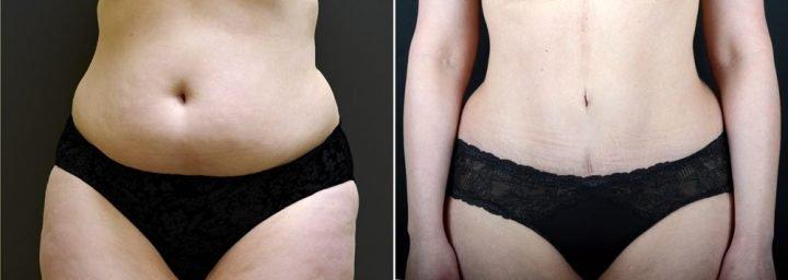 tummy-tuck-liposuction-2636a-sobel-