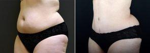 tummy-tuck-liposuction-2636b-sobel-