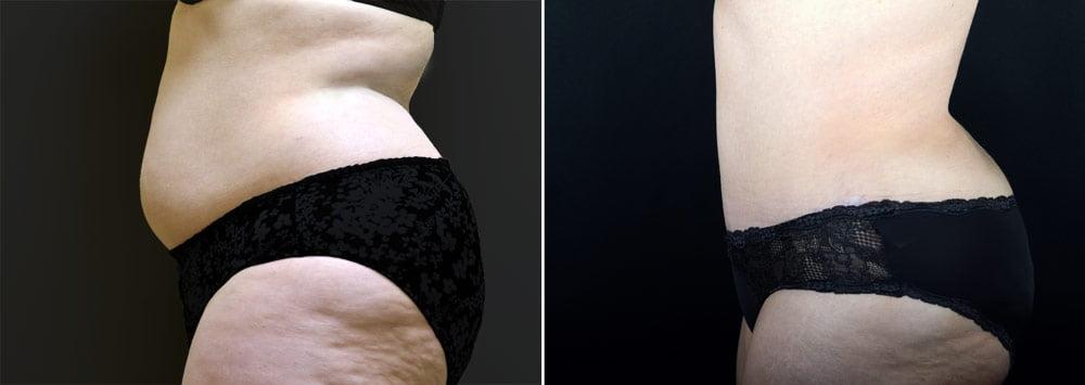 tummy-tuck-liposuction-2636c-sobel