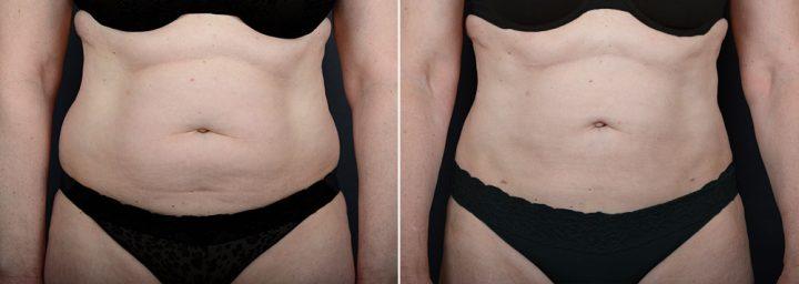 liposuction-8025a-sobel