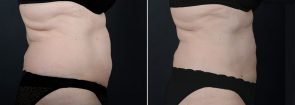 liposuction-8025c-sobel