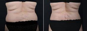 liposuction-8025d-sobel