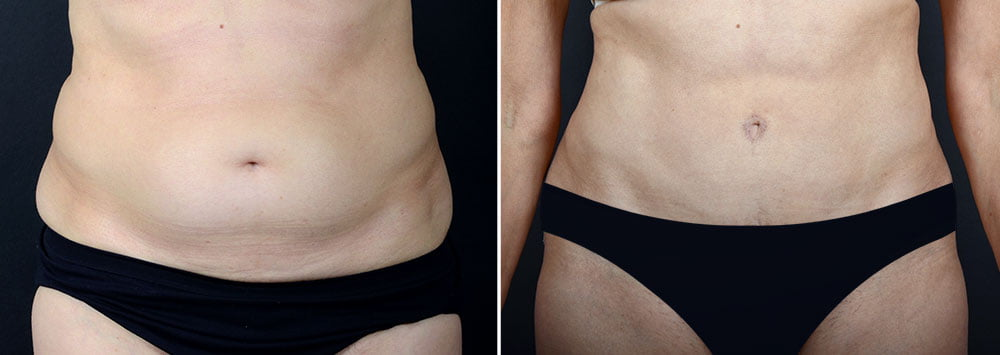 abdominoplasty-10229a-sobel