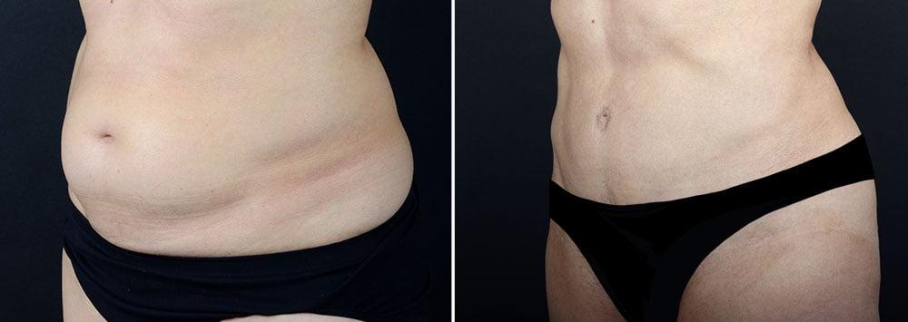 abdominoplasty-10229b-sobel