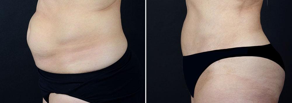 abdominoplasty-10229c-sobel