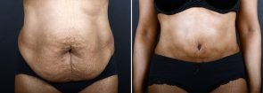 Tummy Tuck & Liposuction