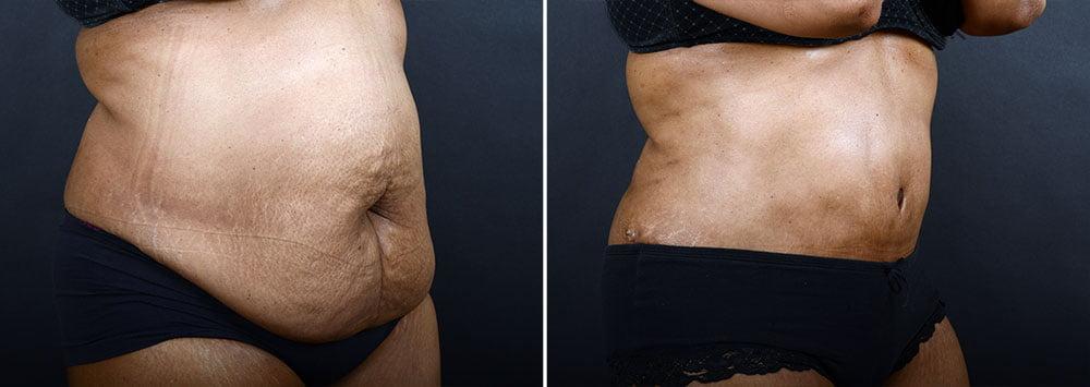abdominoplasty-liposuction-10216b-sobel