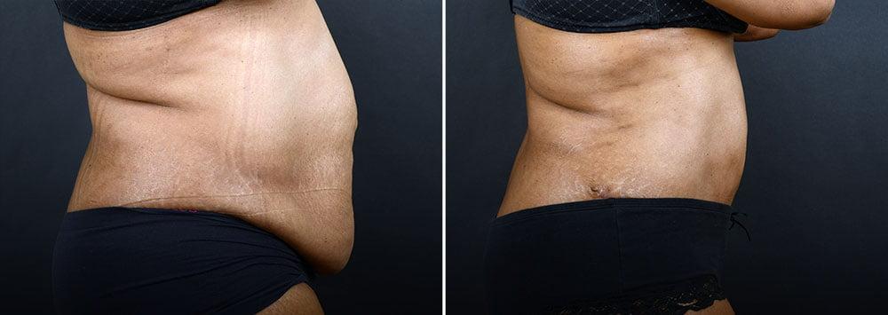 abdominoplasty-liposuction-10216c-sobel