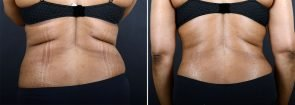 abdominoplasty-liposuction-10216d-sobel