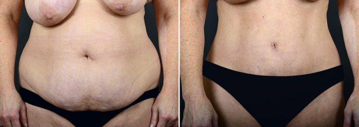 abdominoplasty-liposuction-10290a-sobel
