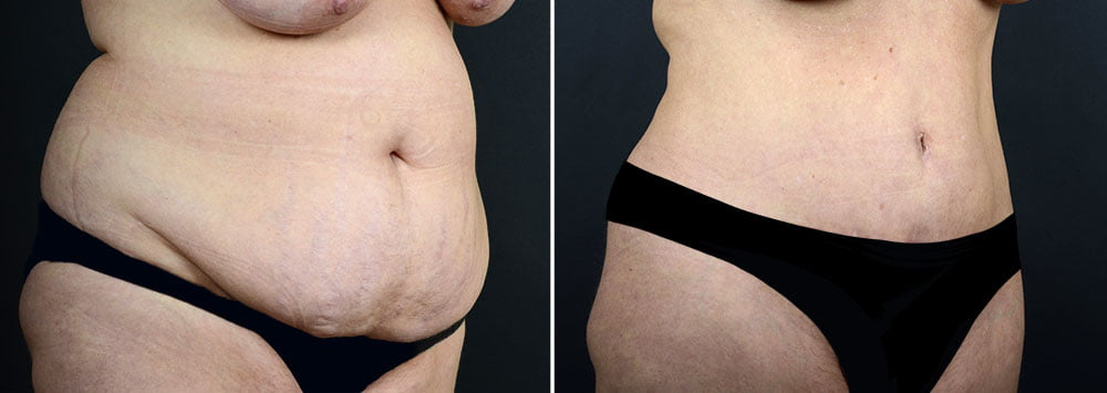 abdominoplasty-liposuction-10290b-sobel