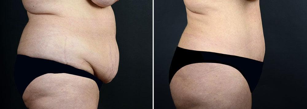 abdominoplasty-liposuction-10290c-sobel
