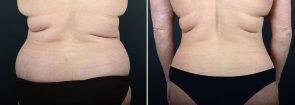 abdominoplasty-liposuction-10290d-sobel