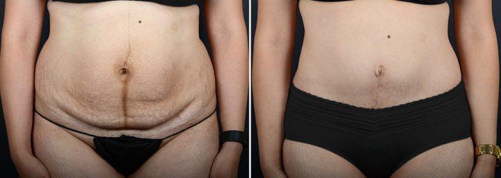 abdominoplasty-liposuction-10304a-sobel