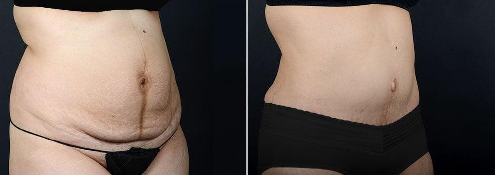abdominoplasty-liposuction-10304b-sobel