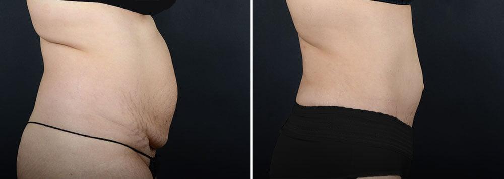 abdominoplasty-liposuction-10304c-sobel