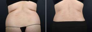 abdominoplasty-liposuction-10304d-sobel