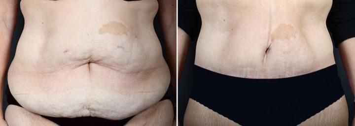 abdominoplasty-liposuction-10366a-sobel