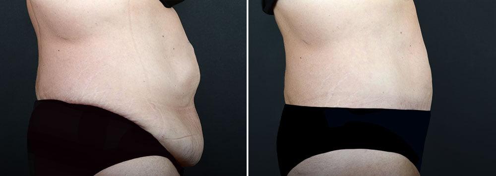 abdominoplasty-liposuction-10366c-sobel