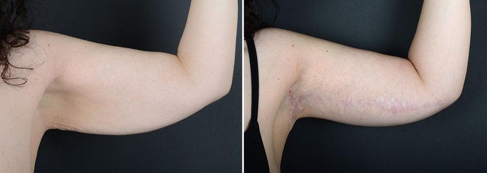 arm-lift-10490a-left-sobel