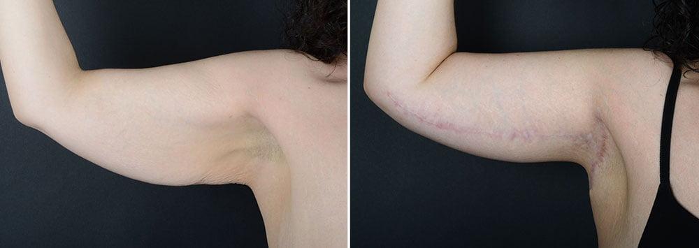 arm-lift-10490a-right-sobel