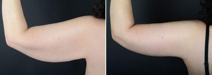arm-lift-10490d-left-sobel