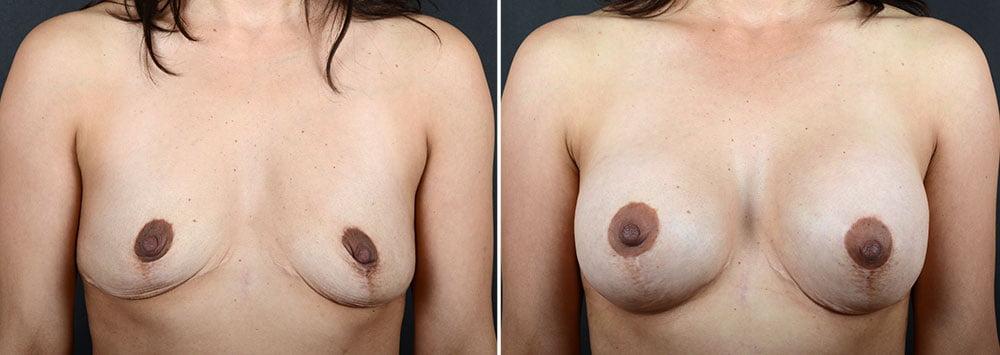 breast-augmentation-10342a-sobel