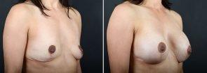 breast-augmentation-10342b-sobel