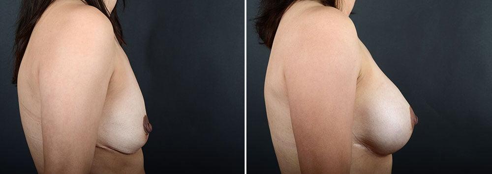 breast-augmentation-10342c-sobel