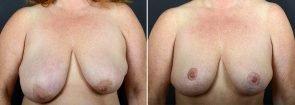 breast-lift-10242a-sobel