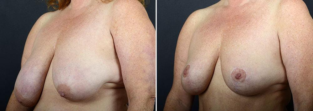 breast-lift-10242b-sobel