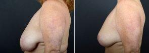 breast-lift-10242c-sobel