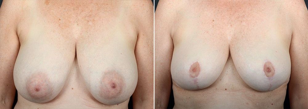 breast-reduction-10047a-sobel