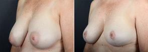 breast-reduction-10047b-sobel