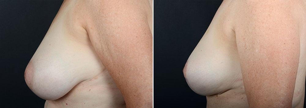 breast-reduction-10047c-sobel