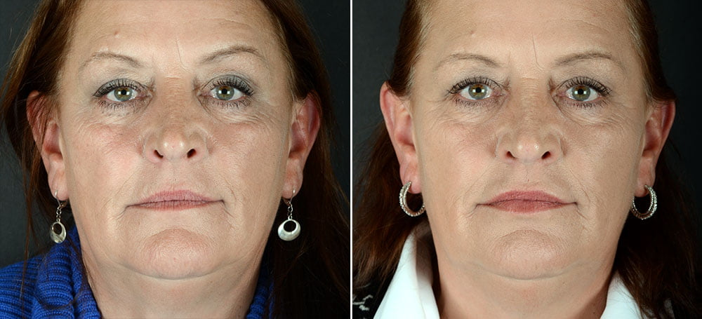 injectable-fillers-volbella-lips-10006a-sobel
