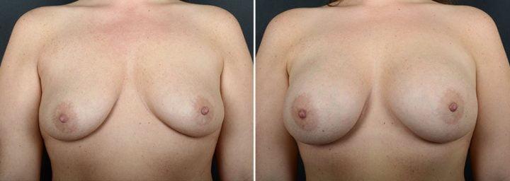 breast-augmentation-10865a-sobel