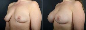 breast-augmentation-10865b-sobel