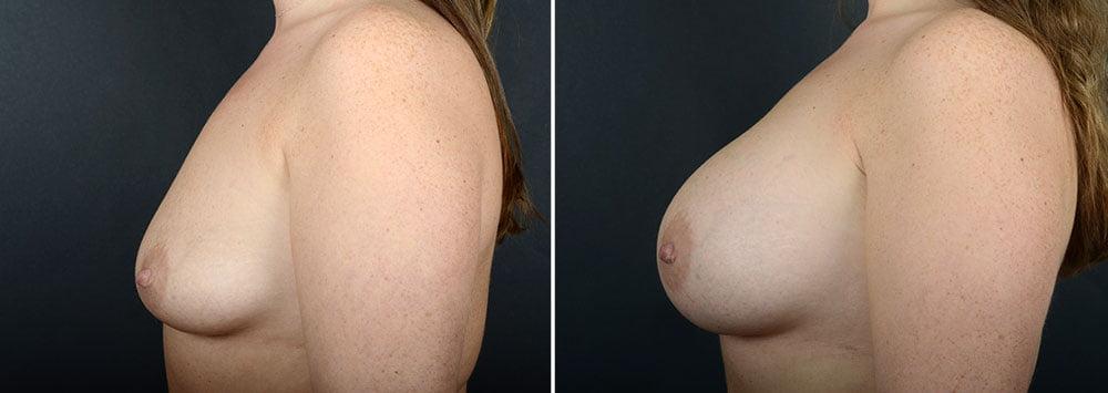 breast-augmentation-10865c-sobel
