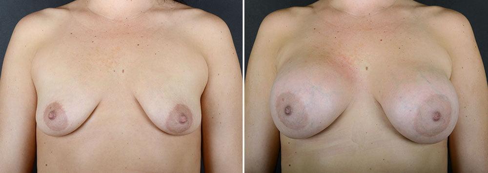 breast-augmentation-10876a-sobel