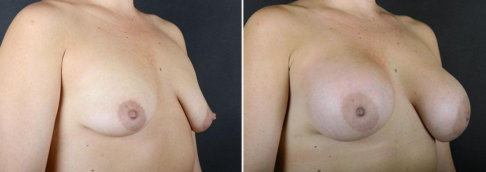 breast-augmentation-10876b-sobel