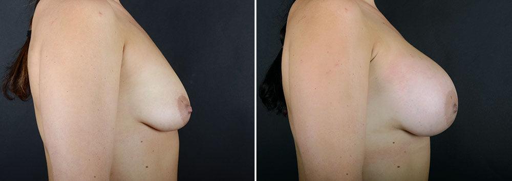 breast-augmentation-10876c-sobel