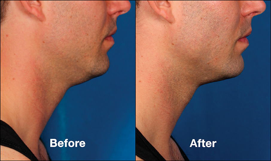 Before & after Kybella injections. Photos courtesy Allergan, inc.*
