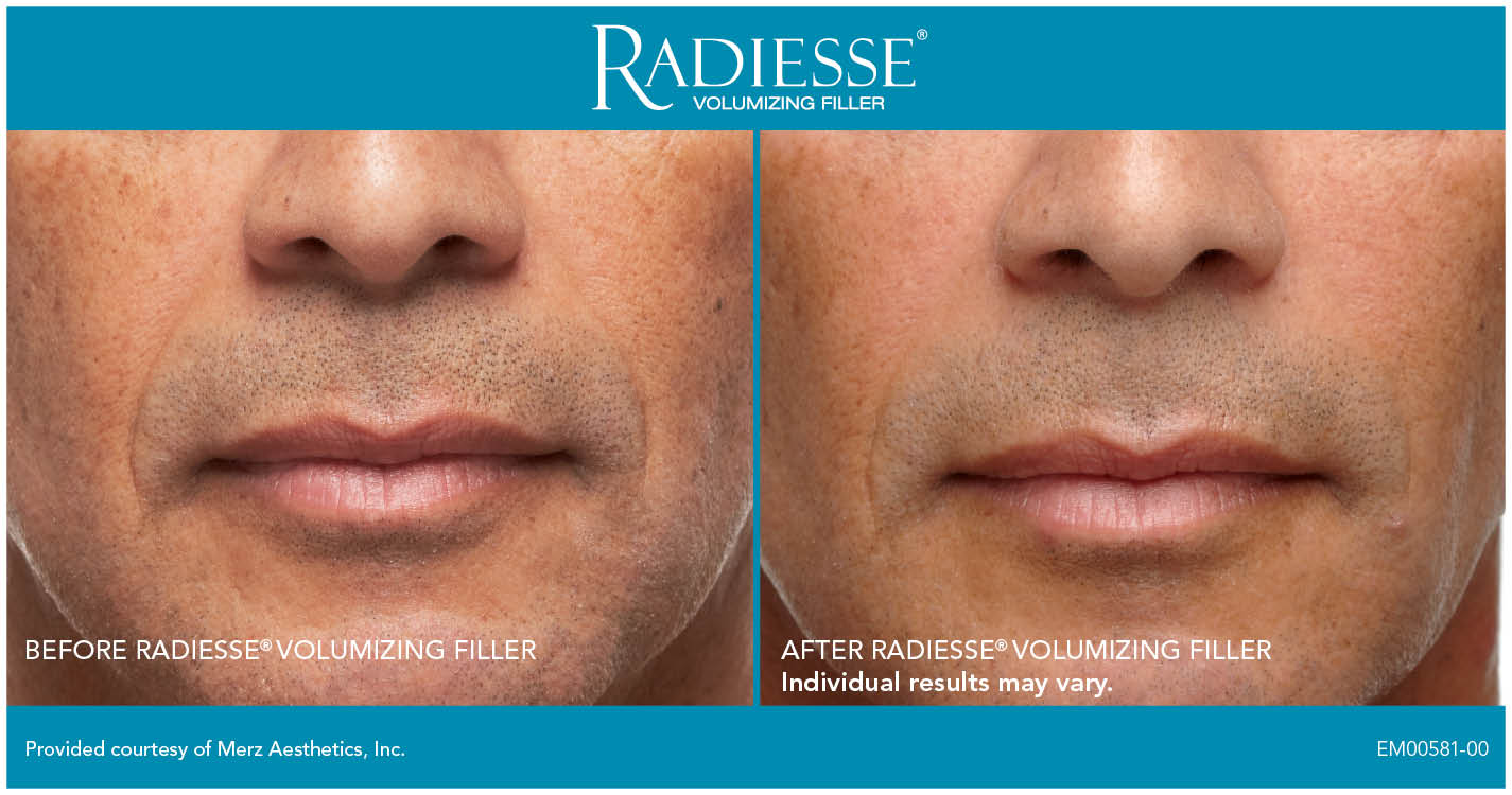 Before & after Radiesse to nasolabial folds. Photos courtesy Merz.*
