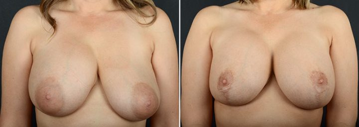 breast-augmentation-revision-with-lift-11473a-sobel