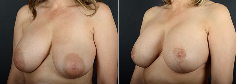 breast-augmentation-revision-with-lift-11473b-sobel